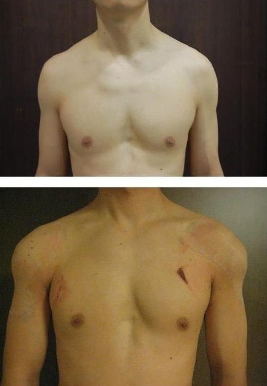 남자 어깨 성형.jpg